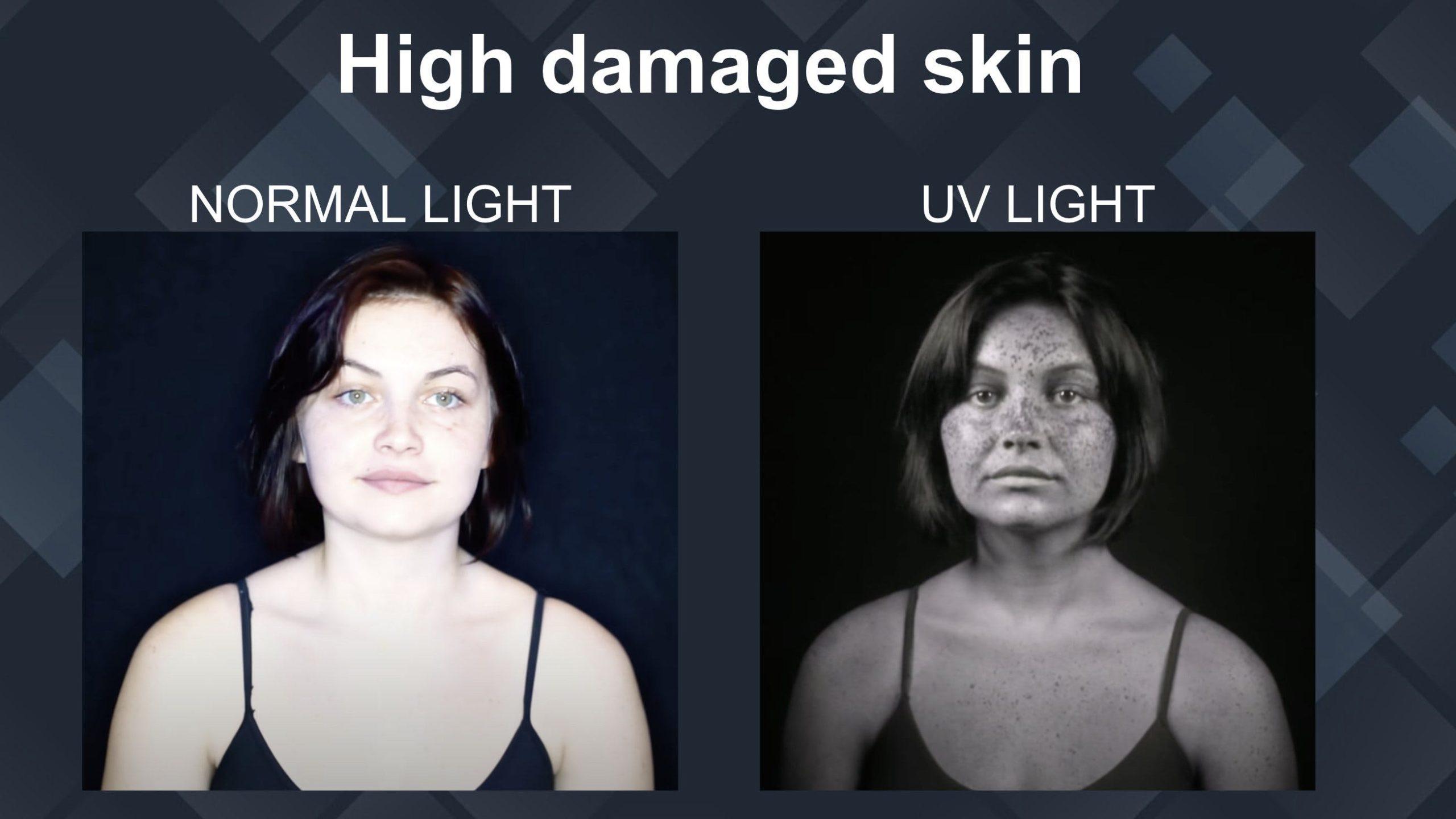 high damaged skin