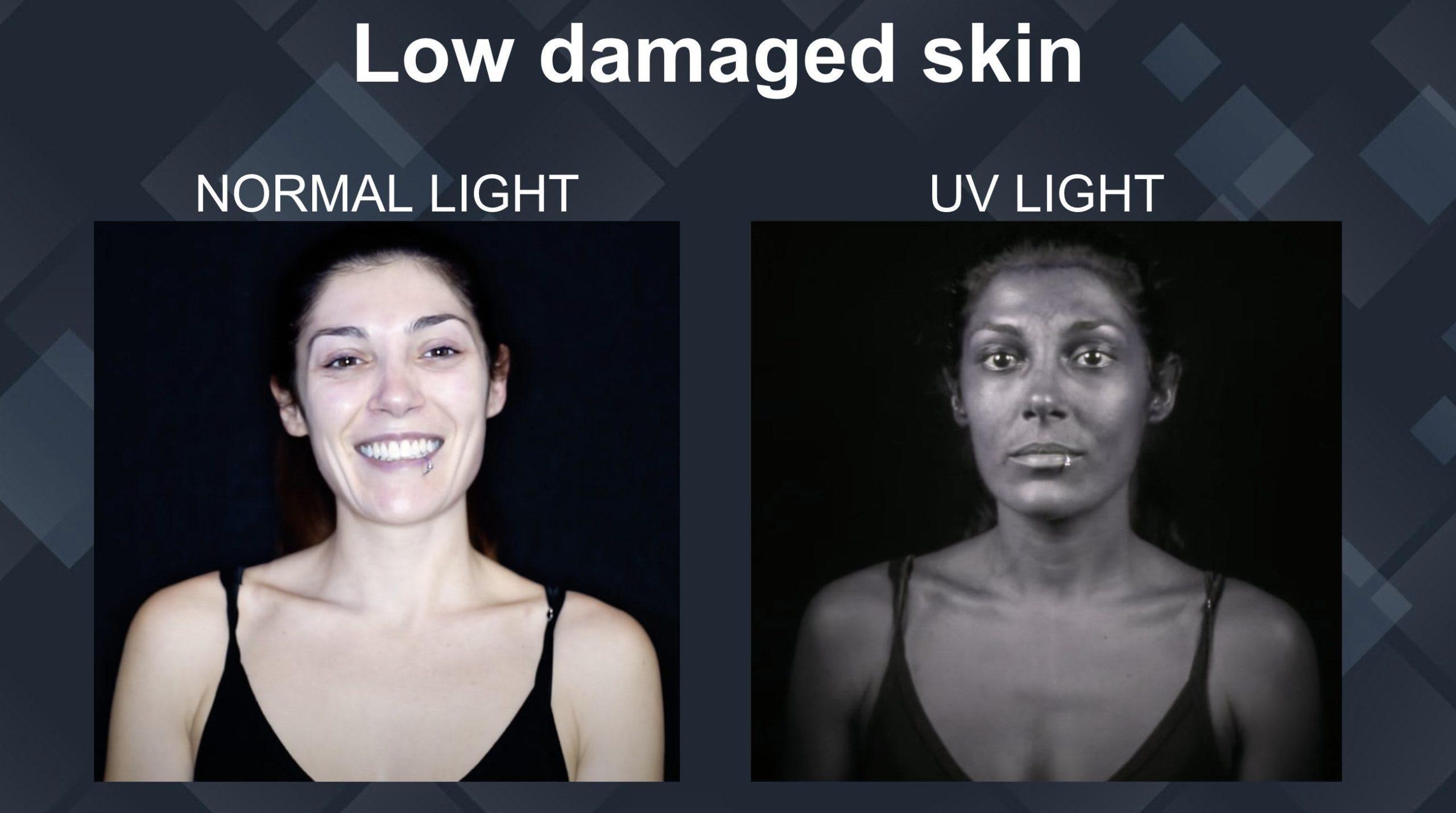 low damaged skin