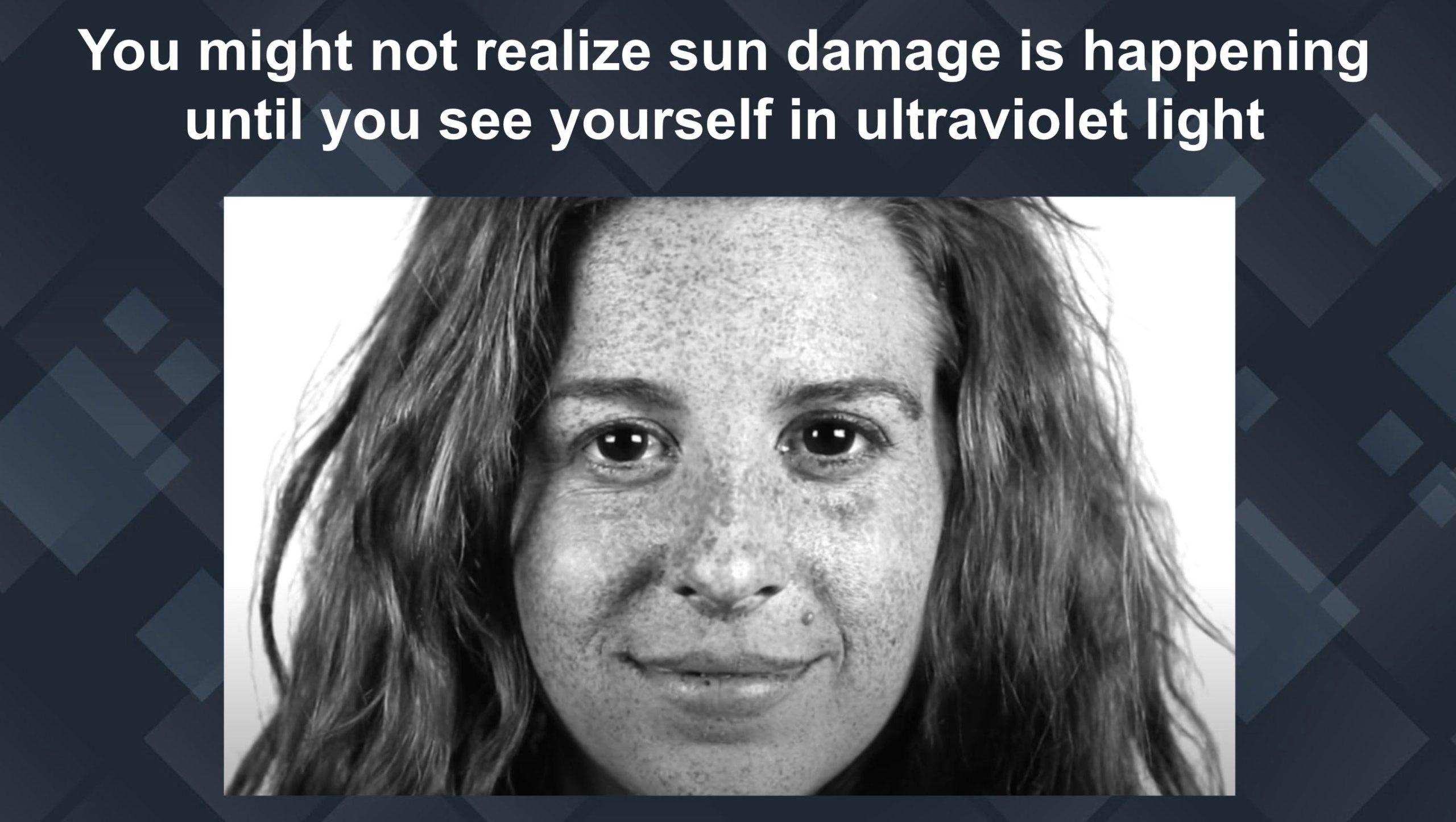 sun damaged skin uv light